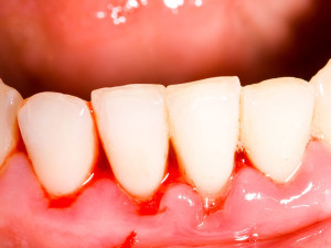 Bleeding Gums Treatment