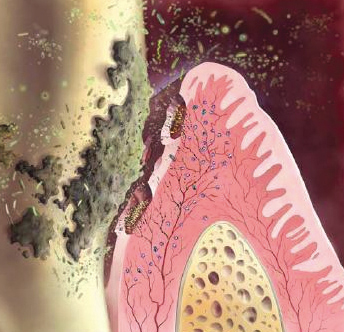 gum-disease bacteria